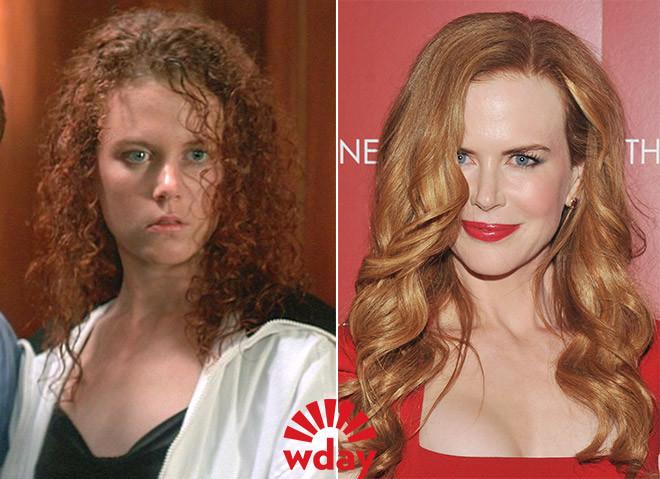 звезды до и после пластики губ фото