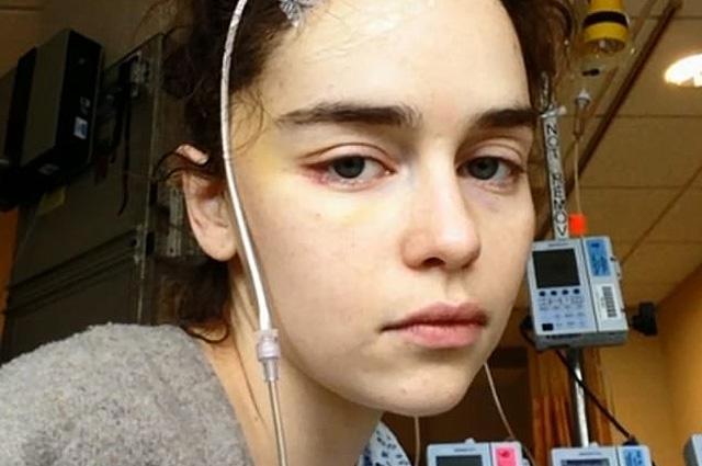 Эмилия Кларк впервые показала фото из больницы после инсульта