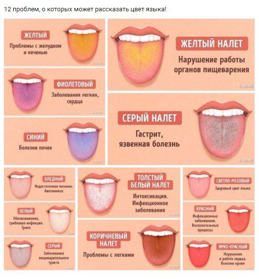 Как узнать состояние своего здоровья по цвету языка.