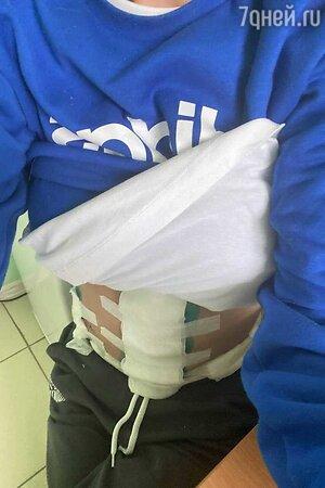 Алиса Аршавина после операции